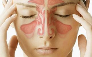Что такое синусит и как его лечить