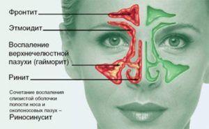Как лечить синусит быстро у взрослого