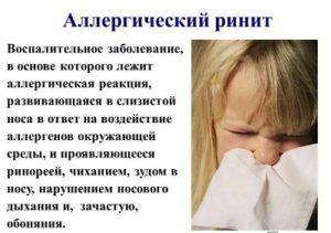 Аллергический ринит сезонный лечение