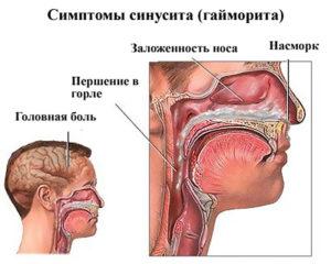 Синусит при беременности: лечение